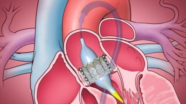 Un test biologique rapide pour valider le succès de l'implantation d'une valve cardiaque