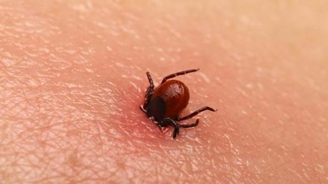 Maladie de Lyme : l'académie de médecine critique la HAS