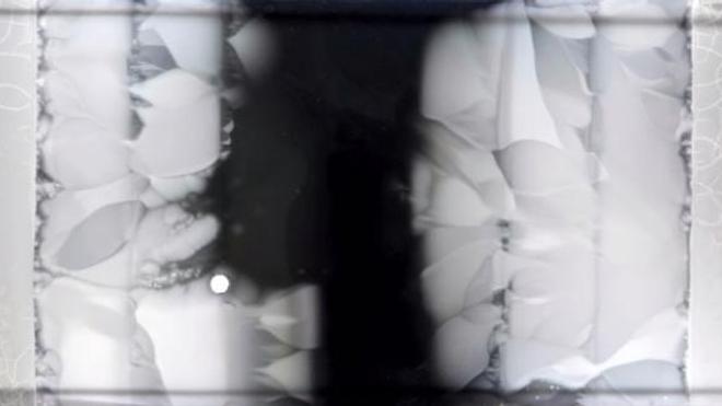 La résistance bactérienne en images