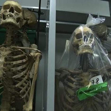 Tout savoir sur le squelette