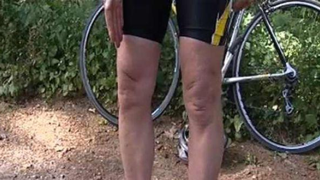 Ch@t : Genoux, ligaments, tendons...