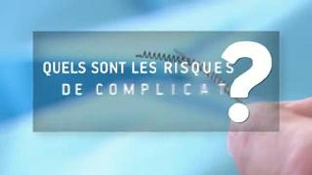 Contraception définitive : trois questions sur les implants Essure®