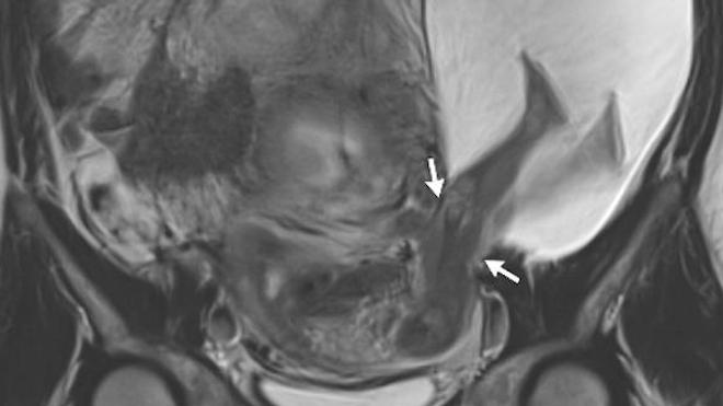 Source : Uterine Rupture with Protruded Legs in a Large Amniocele. P.E. Bouet, & C. Herondelle. NEJM, 22 déc. 2016. doi:10.1056/NEJMicm1603843