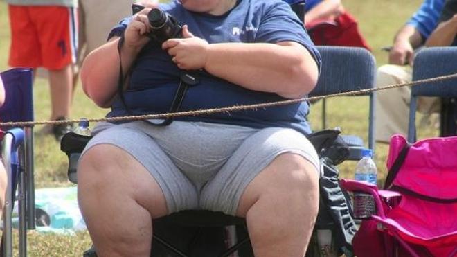Obésité : changer de corps pour changer de vie