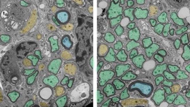 Sclérose en plaques : quand les globules blancs aident à réparer la myéline