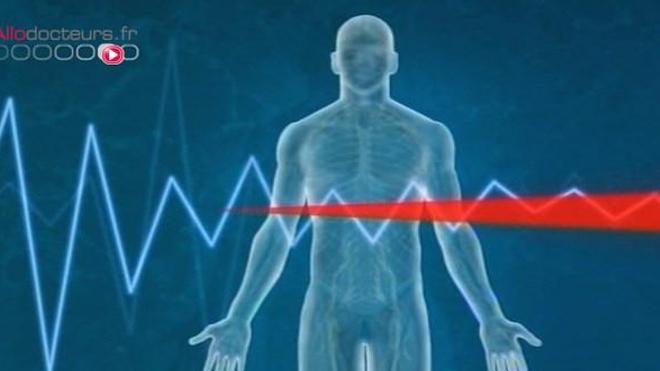 Infarctus du myocarde : y a-t-il toujours des signes avant-coureurs ?