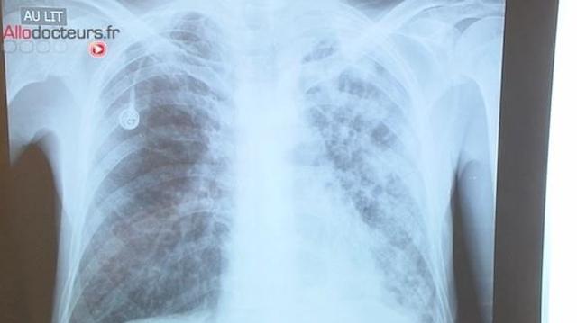 Bacilles de la tuberculose : de plus en plus résistants aux antibiotiques