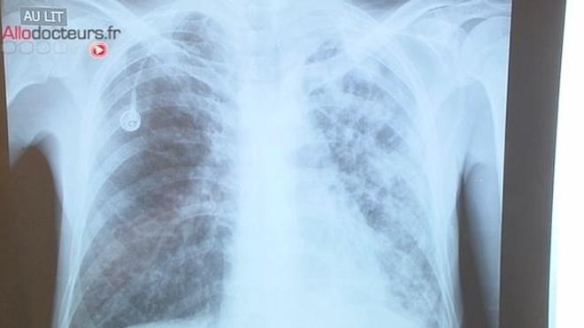 Tuberculose : une campagne de dépistage élargie dans la Vienne (Image d'illustration)