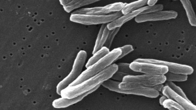 Tuberculose : l'efficacité des nouveaux traitements doit être préservée