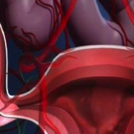 L'endométriose : des douleurs liées aux règles