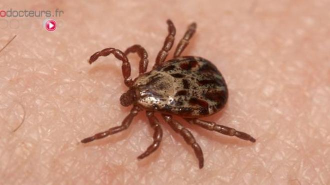 Le nombre de victimes de la maladie de Lyme est estimé à 27.000 par an en France