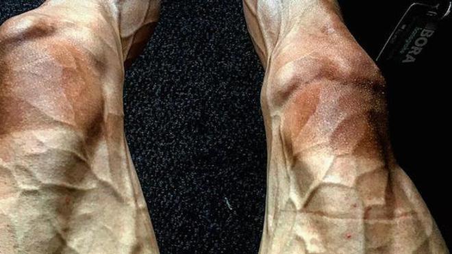 Les jambes de Pawel Poljanski après la 16e étape du Tour de France.