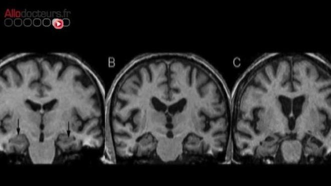 Alzheimer en questions
