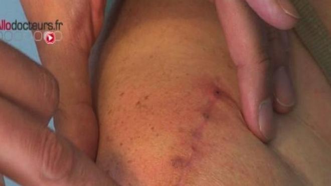Bientôt un pansement anti-cicatrices ?