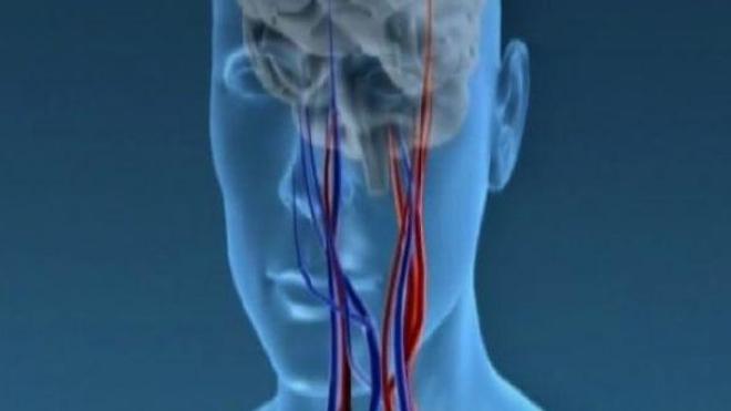 Carotides, des artères à surveiller