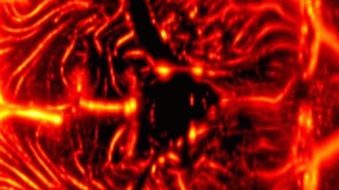 Coupe coronale du réseau vasculaire cérébral, obtenue de façon non-invasive par imagerie Doppler ultrasonore ultrarapide chez un nouveau-né prématuré. (crédit : Inserm U979/Institut Langevin)