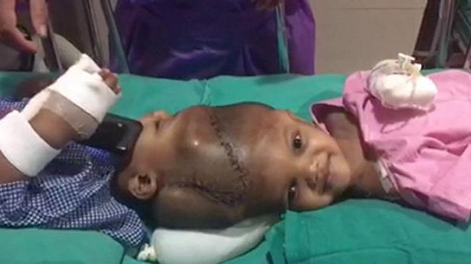 Deux siamois reliés par la tête séparés avec succès en Inde