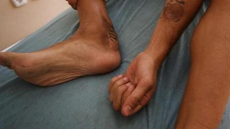 Foot : blessé à la cheville, une bactérie lui ronge le tendon d'Achille