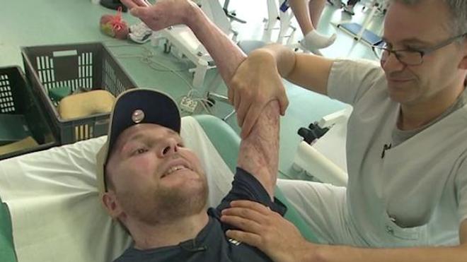 Frank, brûlé sur 95 % de son corps, a été sauvé par une greffe de peau de son frère jumeau