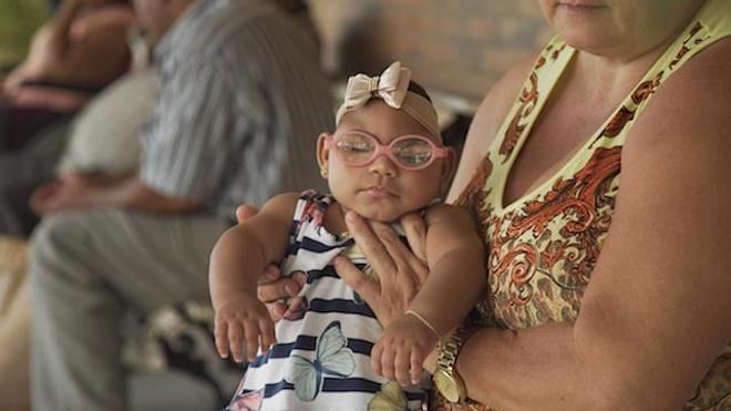 Les enfants nés avec Zika présentent de sérieux retards de développement