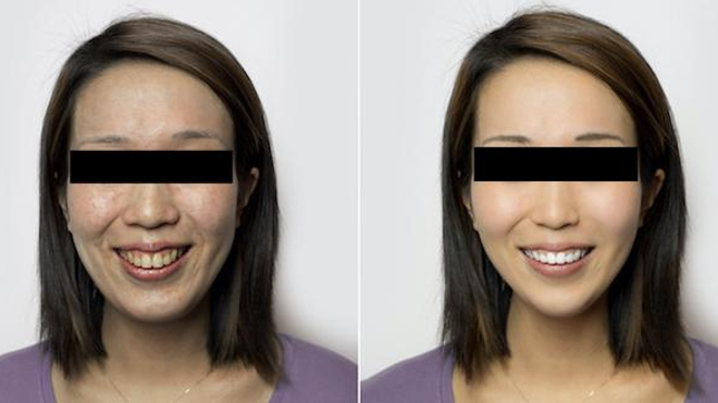 Photo avant/après utilisation du filtre Facetune