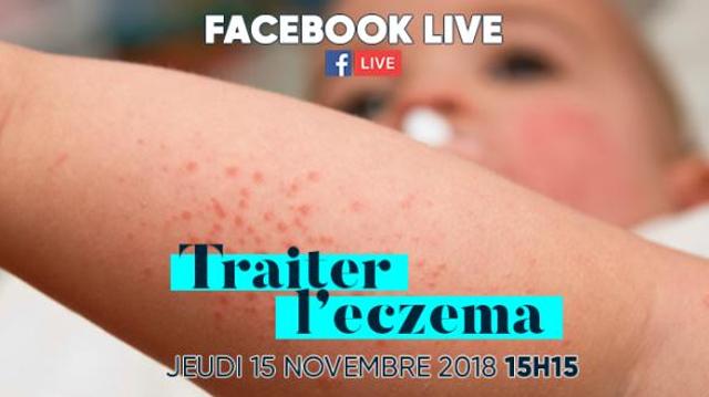 Eczéma : les réponses à vos questions sur notre Facebook Live