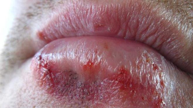 90% de la population sont porteurs d'anticorps anti-herpès