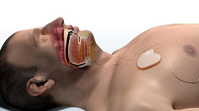 Dispositifs médicaux implantables : de quoi parle-t-on ?