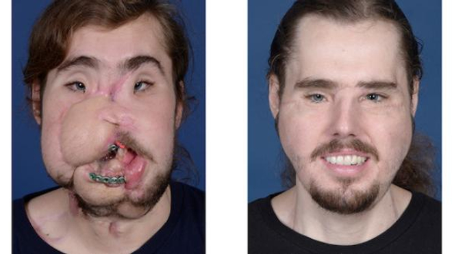 Cameron Underwood avant et après la greffe