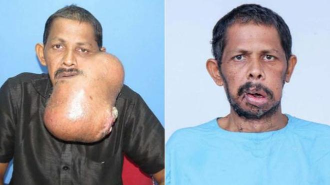 L'indien savoure aujourd'hui sa nouvelle vie après avoir été débarrassé de son énorme tumeur de 5,3 kg.