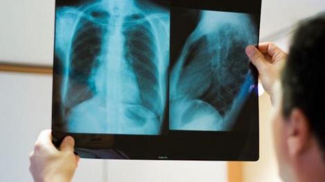 Imagerie médicale : l'exposition des enfants aux radiations a baissé en cinq ans