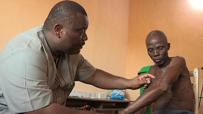 Bénin : au coeur de la lutte contre la lèpre