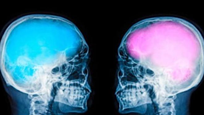Les cerveaux féminins vieilliraient moins vite que les cerveaux masculins