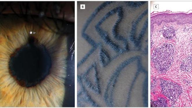 De gauche à droite : oeil gauche du patient, tatouage du bras gauche, échantillon de la biopsie