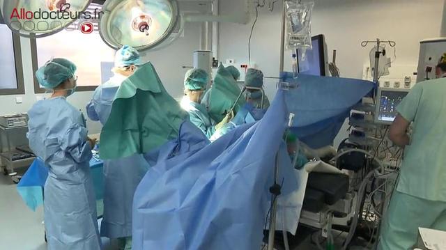 Hystérectomie : enlever l'utérus par les voies naturelles