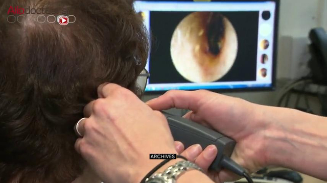 Candida auris : un champignon résistant menace la santé mondiale
