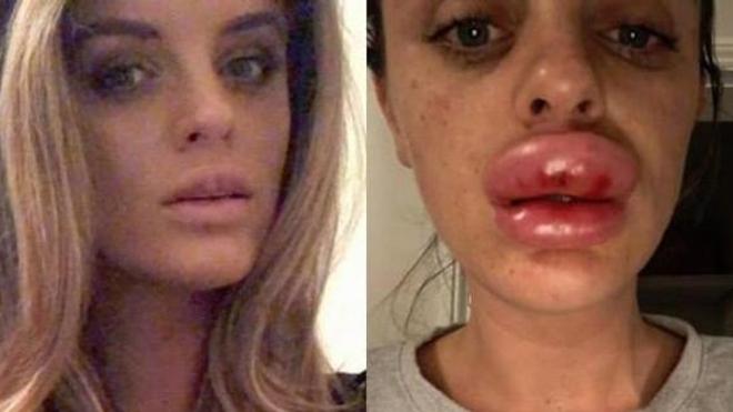 Certains actes esthétiques tels que le comblement des lèvres provoquent des risques d'infections et de kystes