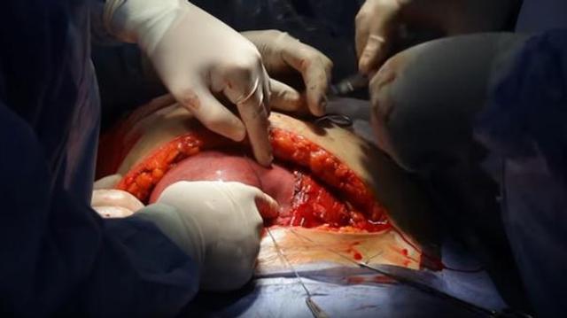 Spina bifida : impressionnante vidéo d'un foetus opéré in utero