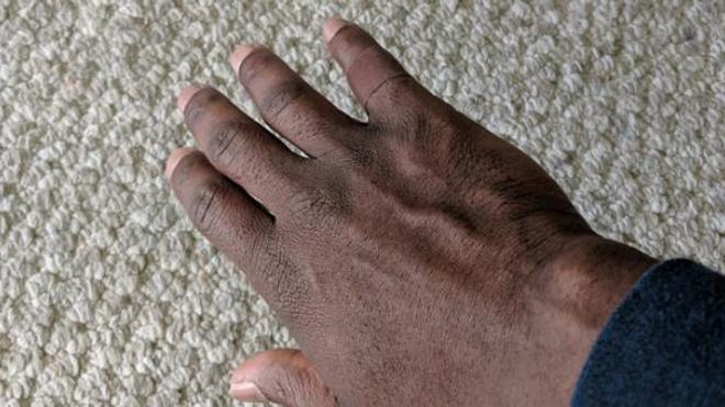 A quand des pansements pour les peaux noires et métissées ?