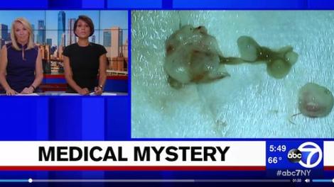 Elle pensait avoir une tumeur au cerveau… c'était un ver !