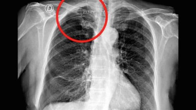 Une femme fait un pneumothorax à cause d'une séance d'acupuncture