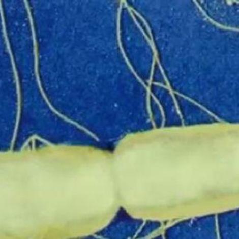 La salmonelle, souvent à l'origine des gastro-entérites