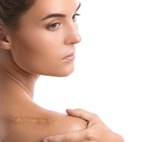 Cicatrisation : réparer la blessure