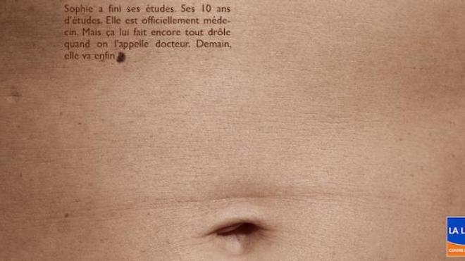 La plupart des cancers de la peau sont évitables