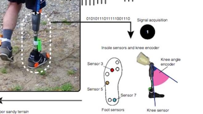 Une prothèse permet de recréer les sensations de la marche