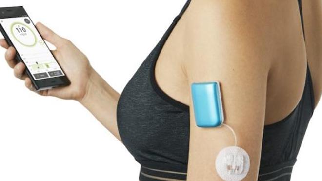 """Un """"pancréas artificiel"""" pourrait révolutionner la vie des diabétiques"""