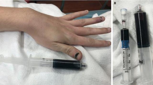 Une femme s'est présentée à l'hôpital avec le sang complètement bleu