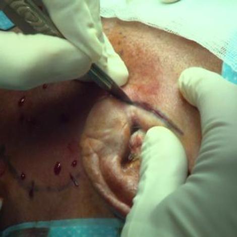 Glandes salivaires : les tumeurs de la glande parotide