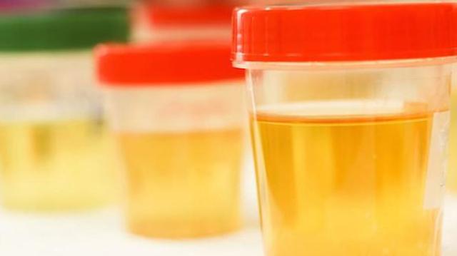 Les superpouvoirs de l'urine !