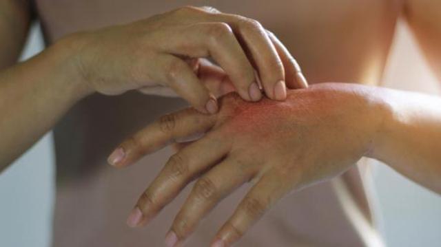 Covid : les dermatologues alertent sur des symptômes cutanés